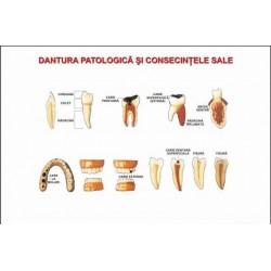 Patologia dintilor