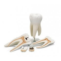 Model Molar gigant cu prezentarea cavitatilor dentare