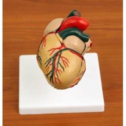 Inima cu hipertrofia ventricolului stang