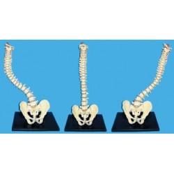 Coloana vertebrala cu bazin